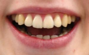 Lingualtechnik - kaum sichtbare Zahnspange