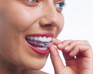 invisalign aligner - unsichtbare Zahnspange für den Oberkierfer